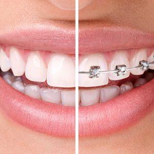 ortodoncia mbt